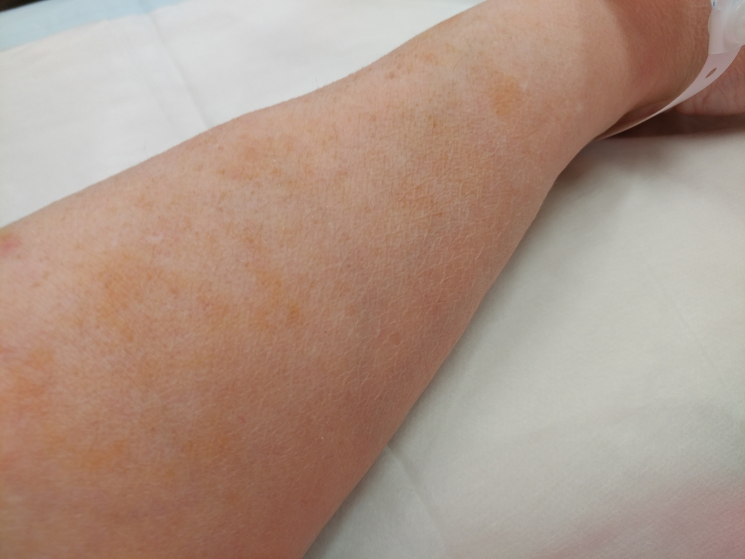 30Nov17 Rust spots! I was having my last iron infusionhellip